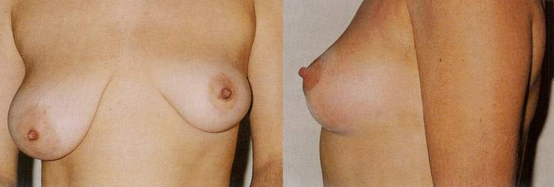 Anisomastia and Breast lift